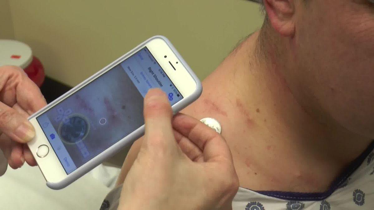 Smartphone App Mole Mapper Helps Detect Skin Cancer