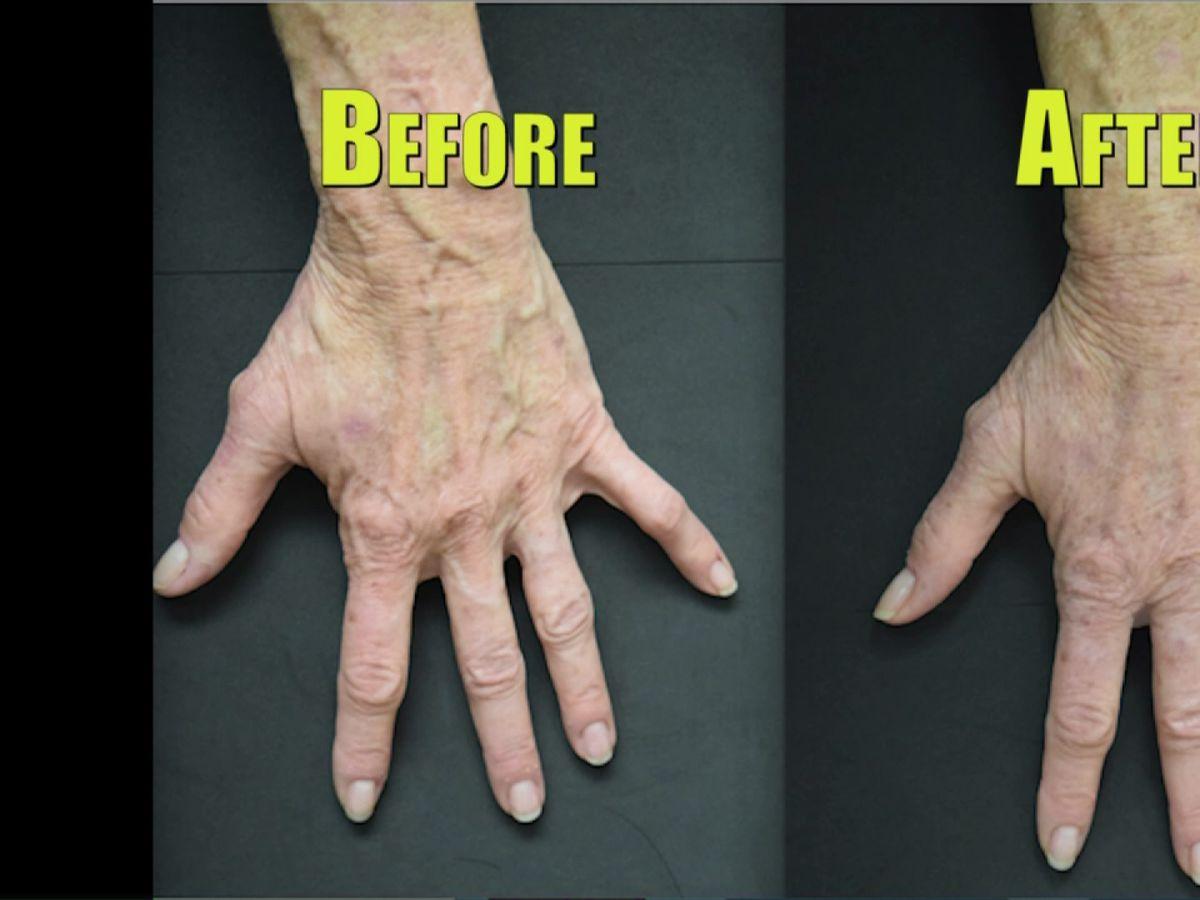 how to make veins more visible