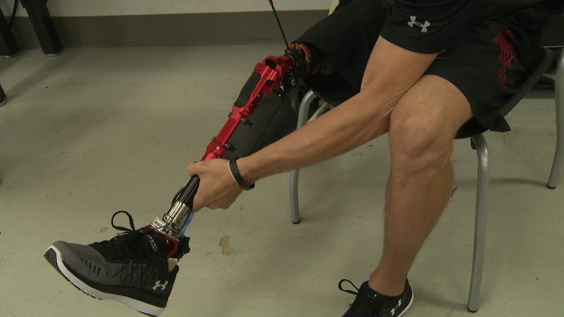 Developing the first truly bionic leg, in today's Medical Moment.