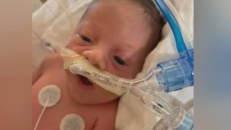 4-month-old Keaton Crull is battling a rare genetic condition called SMA Type 0.