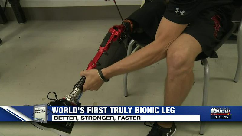 Medical Moment: World's first truly bionic leg